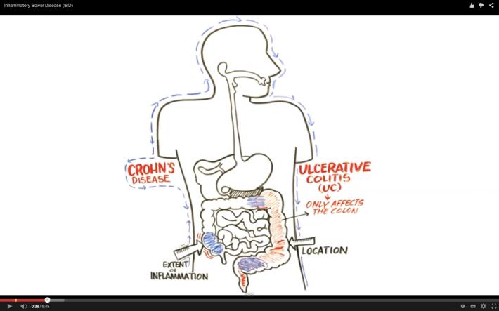 Enfermedad Inflamatoria Intestinal -Enfermedad de Crohn y Colitis Ulcerosa.